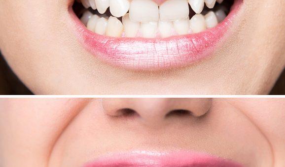 Diagnostizierte Zahnfehlstellung