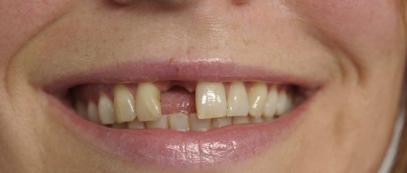 Fehlende Zähne