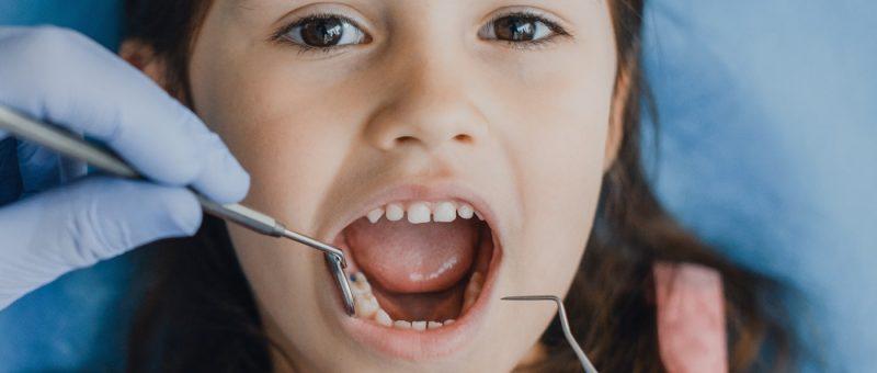 Junges Mädchen mit Kinder Karies beim Zahnarzt