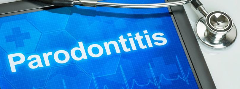 Was ist Parodontose Parodontitis