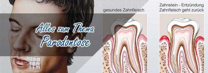 Parodontose Parodontitis