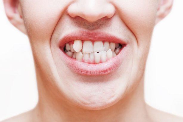Heller junger Mann hat schiefe Zähne