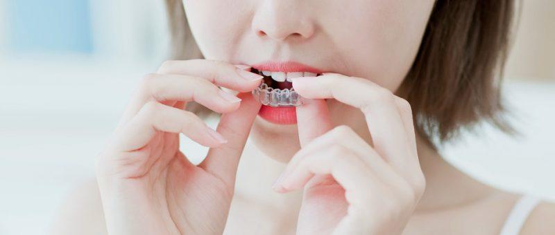 Unsichtbare Zahnschiene