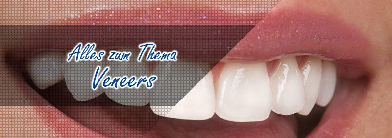 Veneers Zahnlexikon