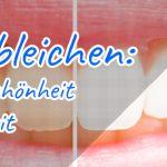 Zähne bleichen: Symbol für Schönheit und Gesundheit