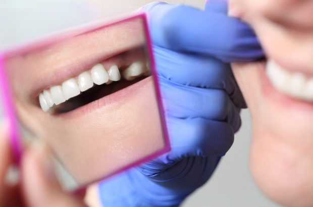 Zahn ziehen - schnell noch versichern