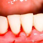 Zahnbetterkrankung: Ursachen & Anzeichen