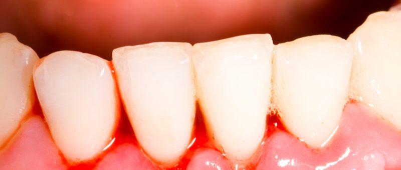 Zahnbetterkrankung