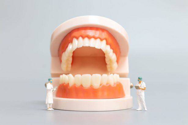 Zahnerosion: Was tun bei Zahnschmelzabbau