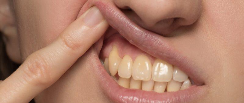 Zahnfleischschwund