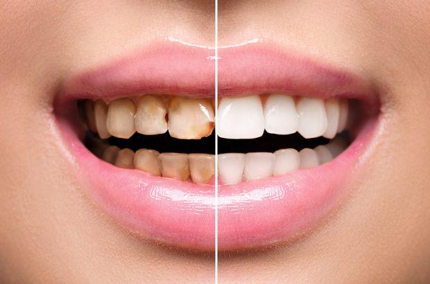Zahnverfaerbung