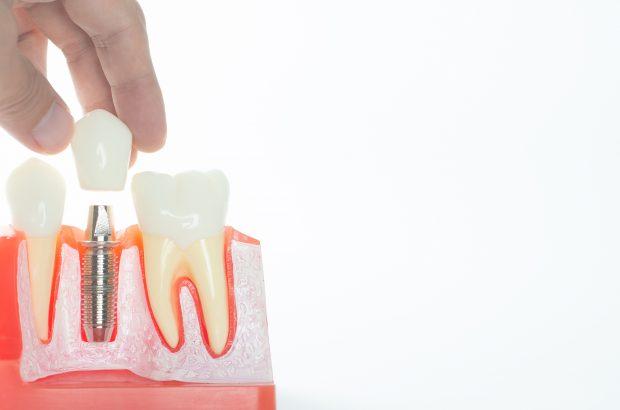 Zahnzusatzversicherung bei fehlenden Zähnen